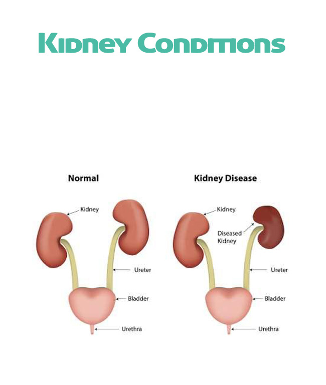Kidney Conditions