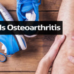 What Is Osteoarthritis: Stages of Knee Osteoarthritis