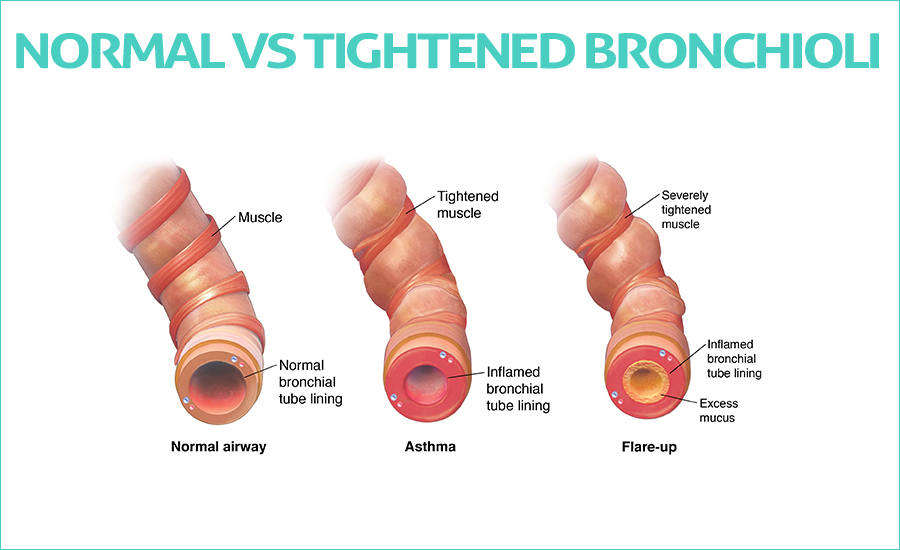 Normal Vs Tightened bronchioli