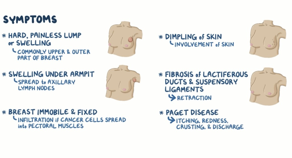 Symptoms of Breast Cancer: Treatments and Prevention