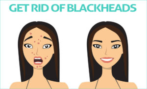 Natural Home Remedies to Get Rid of Blackheads
