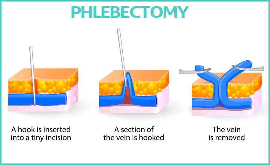 Phlebectomy