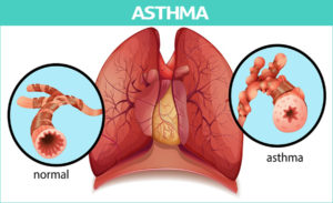 How to Cure Asthma: Causes, Symptoms, Treatment