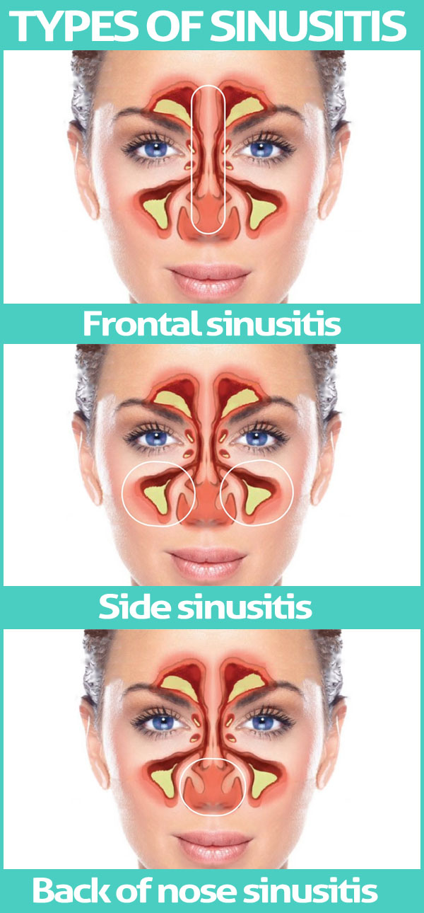 Types of Sinusitis