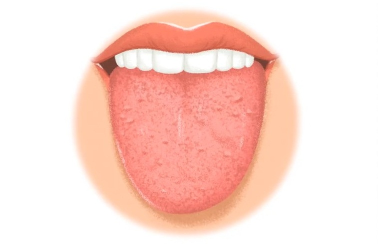 Inflamed Taste Bud - Pictures, Causes, Treatment, Home ...